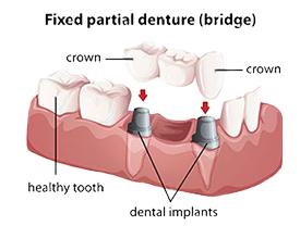 Dental Bridge | Smile Suite | Todd Girard DMD | Kelly Kawahara DMD | Wailuku, HI 96793