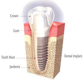 Dental Implants | Smile Suite | Todd Girard DMD | Kelly Kawahara DMD | Wailuku, HI 96793