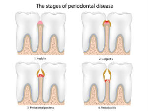 Gum Disease Treatment | Smile Suite | Todd Girard DMD | Kelly Kawahara DMD | Wailuku, HI 96793