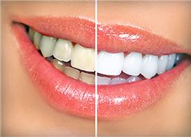 Teeth Whitening | Smile Suite | Todd Girard DMD | Kelly Kawahara DMD | Wailuku, HI 96793
