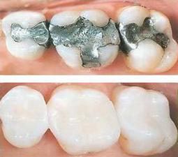 Dental Fillings | Smile Suite | Todd Girard DMD | Kelly Kawahara DMD | Wailuku, HI 96793